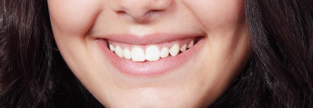 wybielanie zębów w gabinecie stomatologicznym daje najlepsze efekty