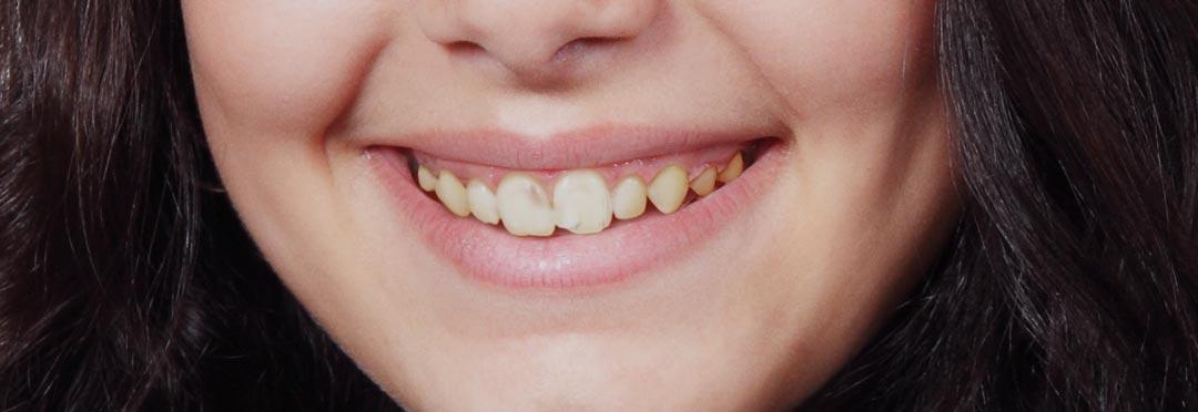 niezwykła metamorfoza dzięki wybielaniu zębów w gabinecie stomatologicznym