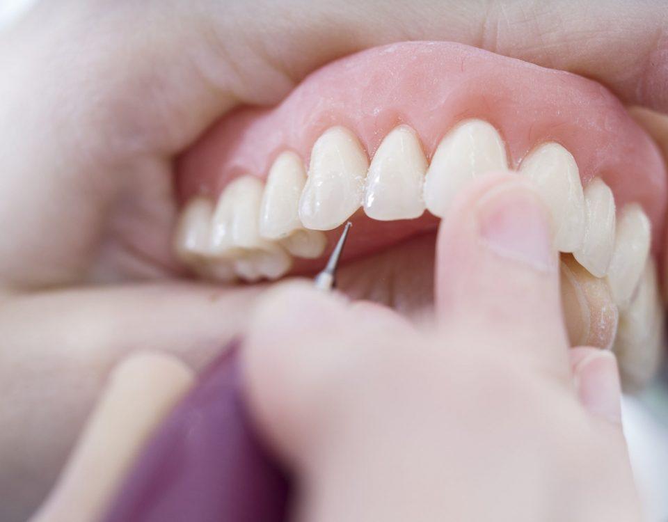 jak dbać o protezę zębów? dlaczego należy zdjąć protezę przed snem?
